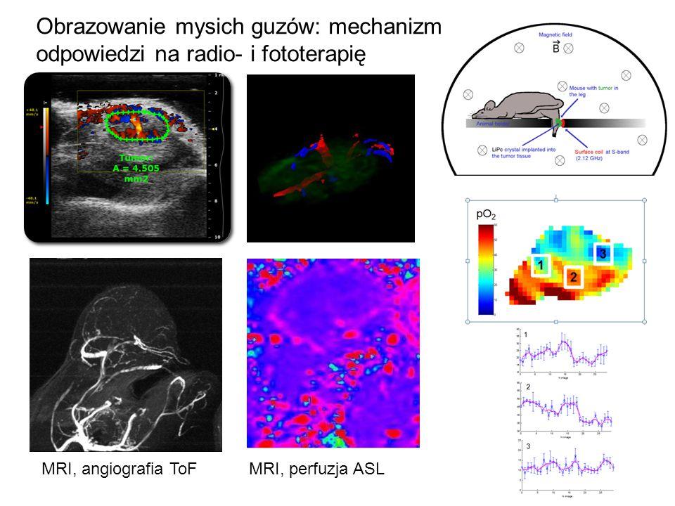 Obrazowanie mysich guzów: mechanizm odpowiedzi na radio- i fototerapię MRI, angiografia ToFMRI, perfuzja ASL