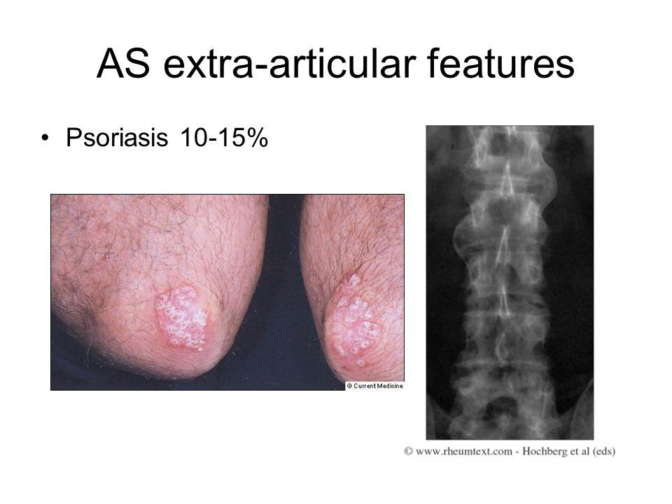 AS extra-articular features Psoriasis 10-15%