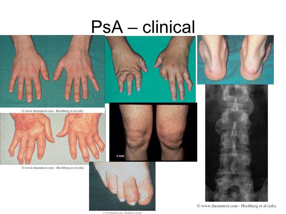 PsA – clinical