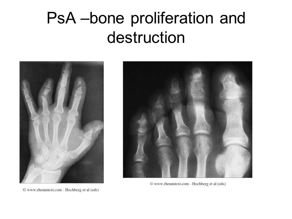 PsA –bone proliferation and destruction