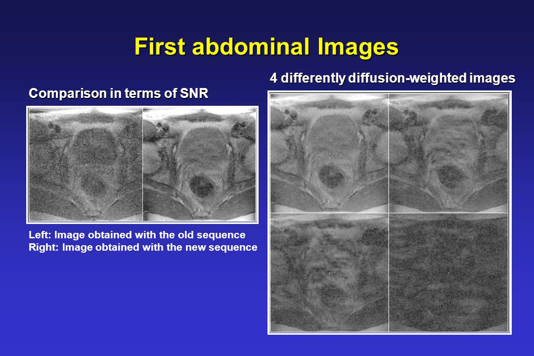 First abdominal Images Left: Image obtained with the old sequence Right: Image obtained with the new sequence Comparison in terms of SNR 4 differently