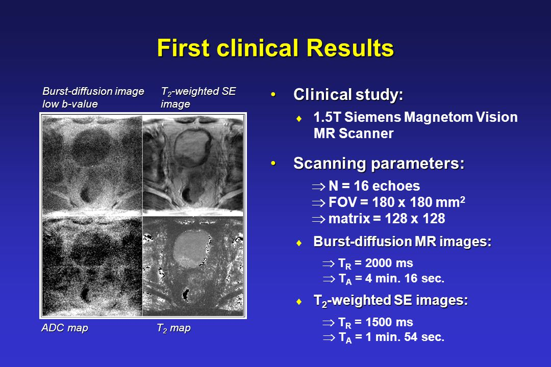First clinical Results Clinical study: Clinical study:  1.5T Siemens Magnetom Vision MR Scanner Scanning parameters: Scanning parameters:  N = 16 ec