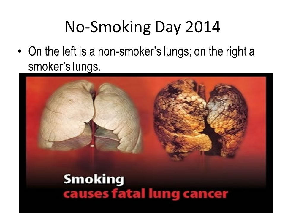 No-Smoking Day 2014 On the left is a non-smoker's lungs; on the right a smoker's lungs.