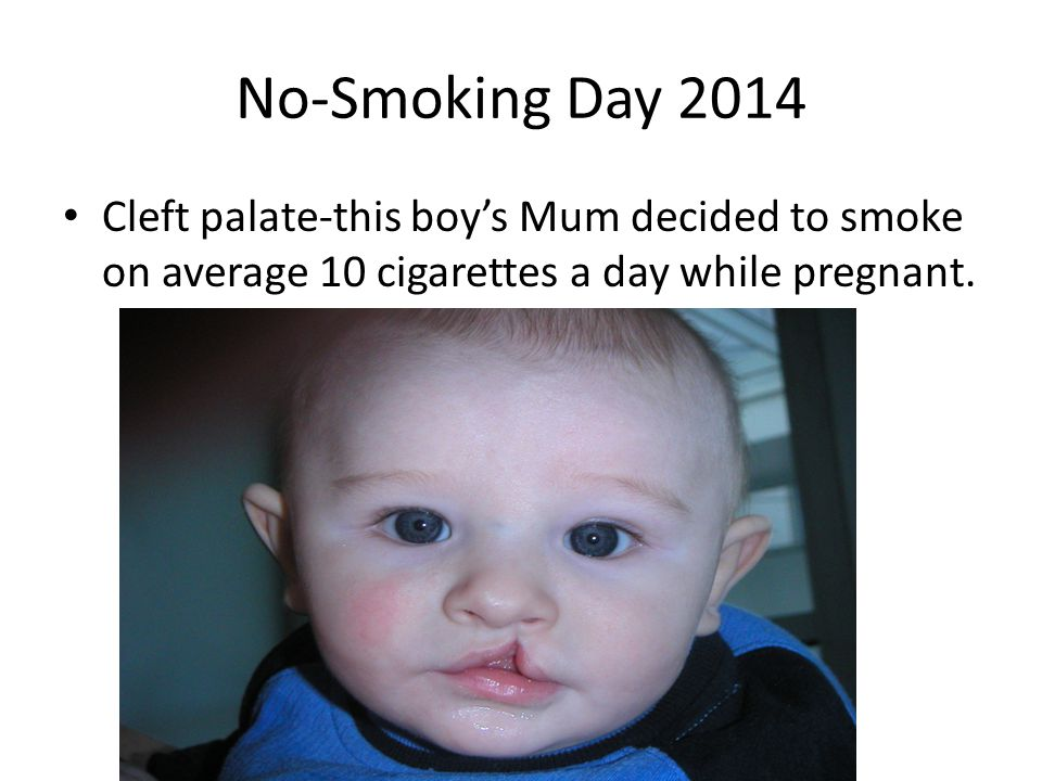No-Smoking Day 2014 Cleft palate-this boy's Mum decided to smoke on average 10 cigarettes a day while pregnant.