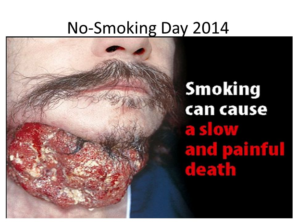No-Smoking Day 2014