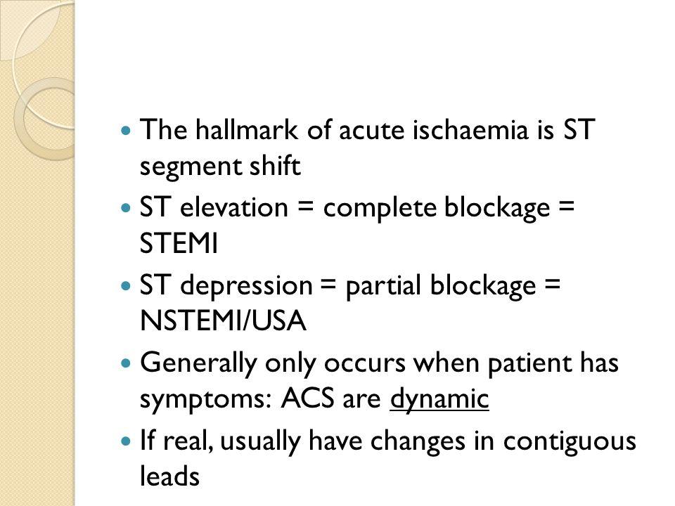 The hallmark of acute ischaemia is ST segment shift ST elevation = complete blockage = STEMI ST depression = partial blockage = NSTEMI/USA Generally o