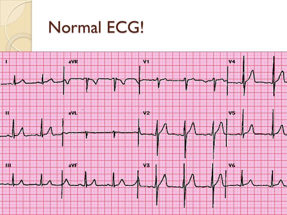 The hallmark of acute ischaemia is ST segment shift ST elevation = complete blockage = STEMI ST depression = partial blockage = NSTEMI/USA Generally only occurs when patient has symptoms: ACS are dynamic If real, usually have changes in contiguous leads