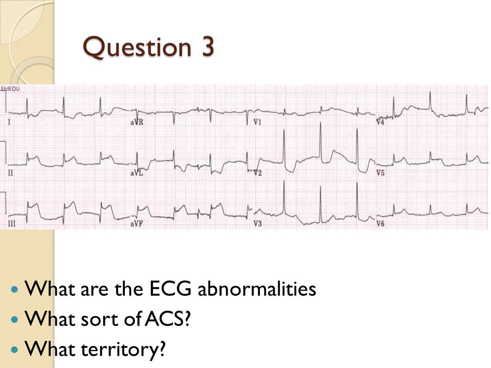 Question 3 What are the ECG abnormalities What sort of ACS? What territory?