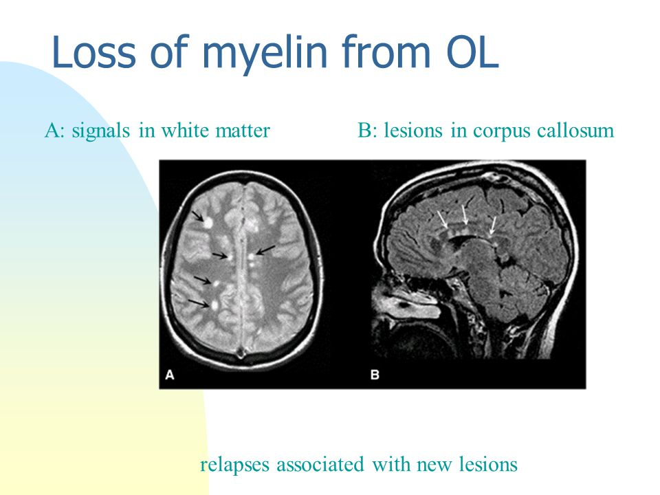 Loss of myelin from OL B: lesions in corpus callosumA: signals in white matter relapses associated with new lesions