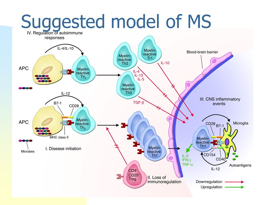 Suggested model of MS