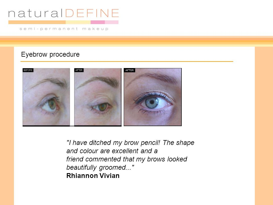 Eyebrow procedure I have ditched my brow pencil.