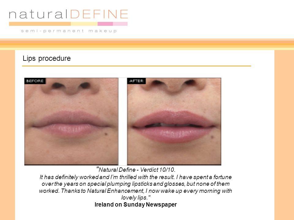 Lips procedure Natural Define - Verdict 10/10.
