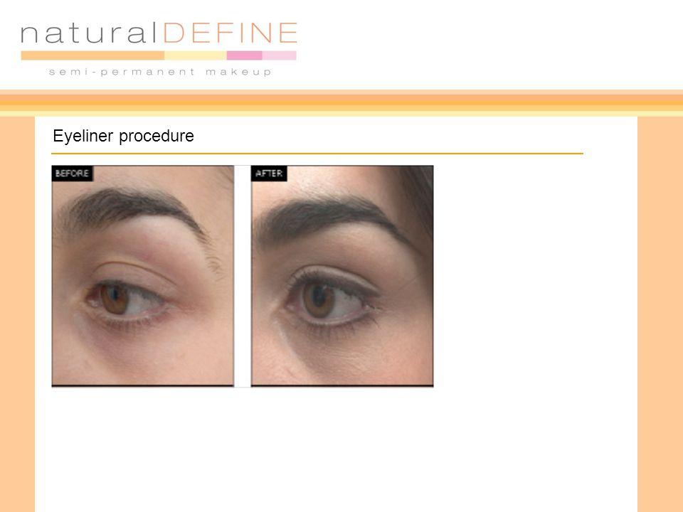 Eyeliner procedure