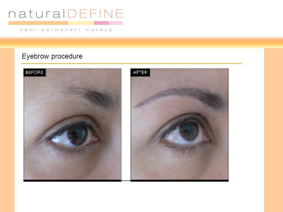 Eyebrow procedure