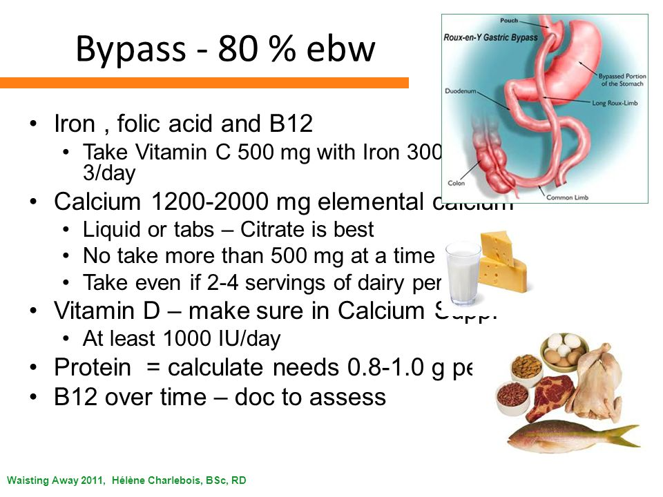 Waisting Away 2011, Hélène Charlebois, BSc, RD Bypass - 80 % ebw Iron, folic acid and B12 Take Vitamin C 500 mg with Iron 300 mg 1 to 3/day Calcium mg elemental calcium Liquid or tabs – Citrate is best No take more than 500 mg at a time Take even if 2-4 servings of dairy per day Vitamin D – make sure in Calcium Supp.
