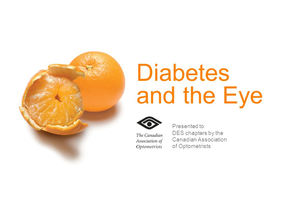 An optometrist knows your eyes inside and out OPTO.CA Moderate background diabetic retinopathy
