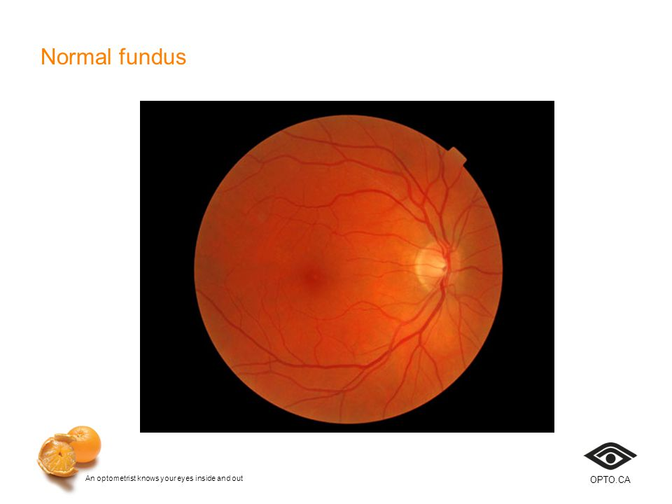 An optometrist knows your eyes inside and out OPTO.CA Normal fundus