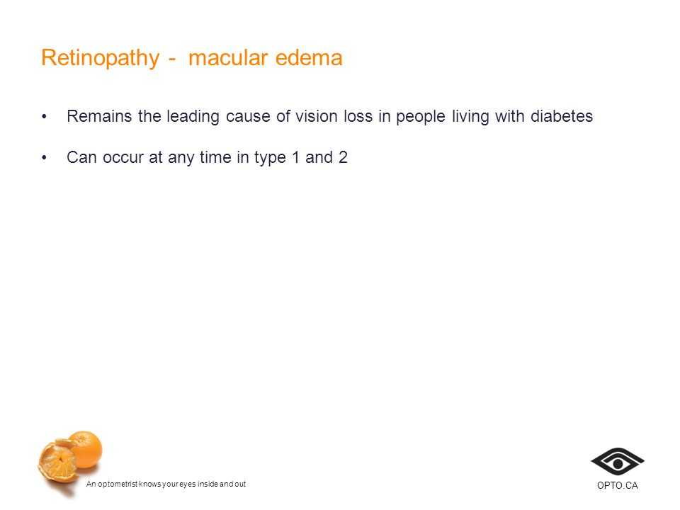An optometrist knows your eyes inside and out OPTO.CA Retinopathy - macular edema Remains the leading cause of vision loss in people living with diabetes Can occur at any time in type 1 and 2
