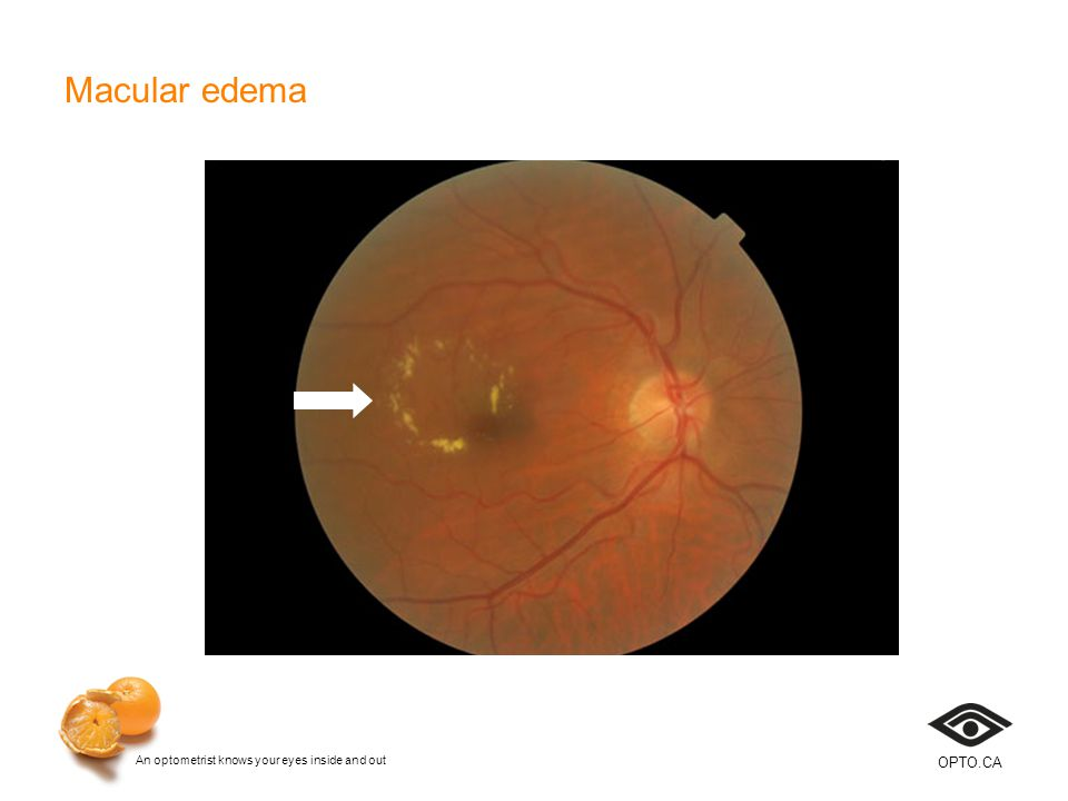 An optometrist knows your eyes inside and out OPTO.CA Macular edema