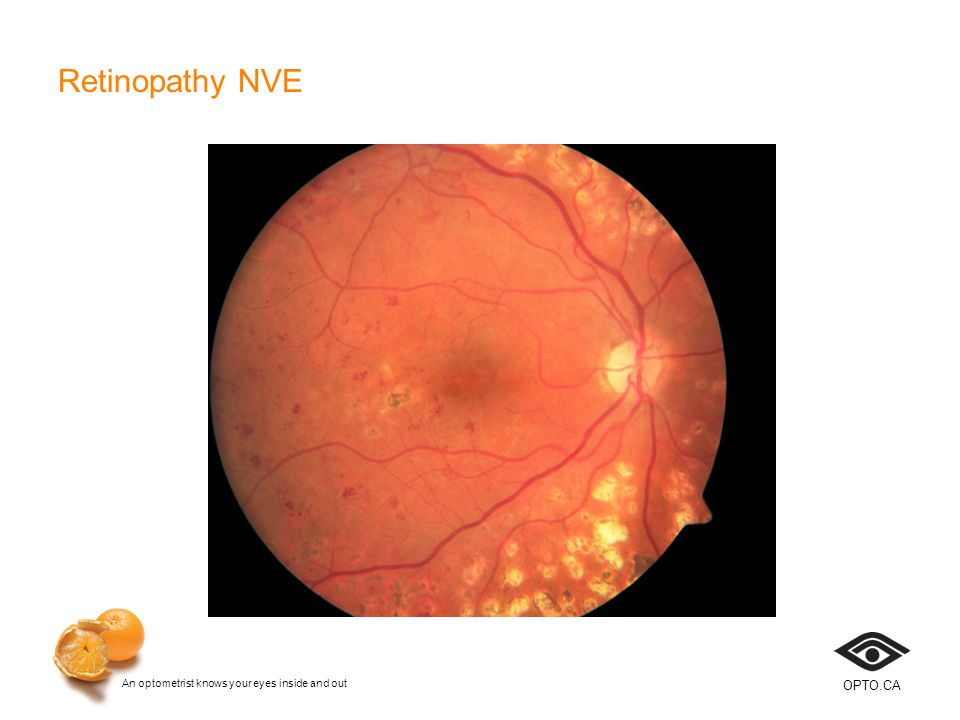 An optometrist knows your eyes inside and out OPTO.CA Retinopathy NVE