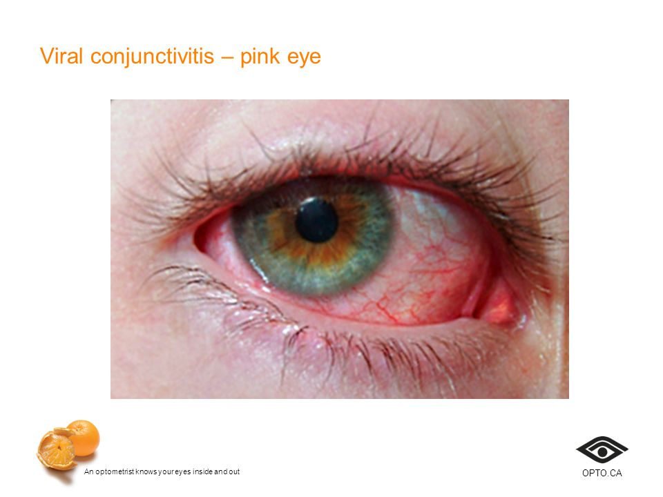 An optometrist knows your eyes inside and out OPTO.CA Viral conjunctivitis – pink eye