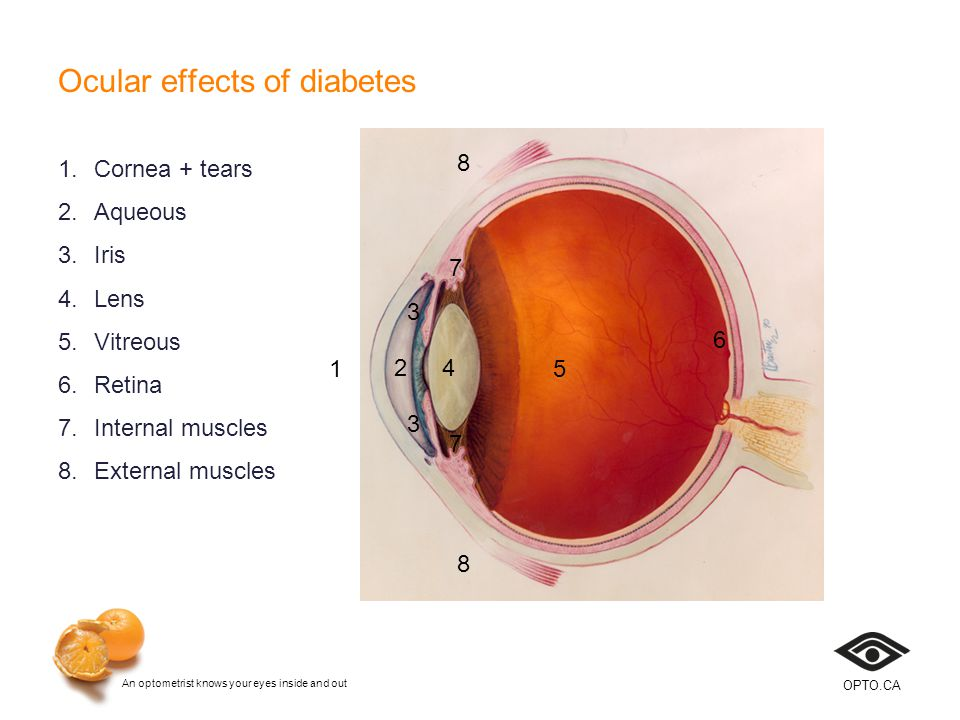 An optometrist knows your eyes inside and out OPTO.CA Allergic conjunctivitis