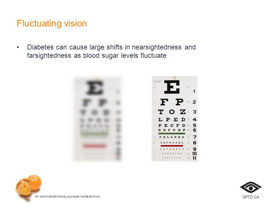 An optometrist knows your eyes inside and out OPTO.CA Fluctuating vision Diabetes can cause large shifts in nearsightedness and farsightedness as blood sugar levels fluctuate