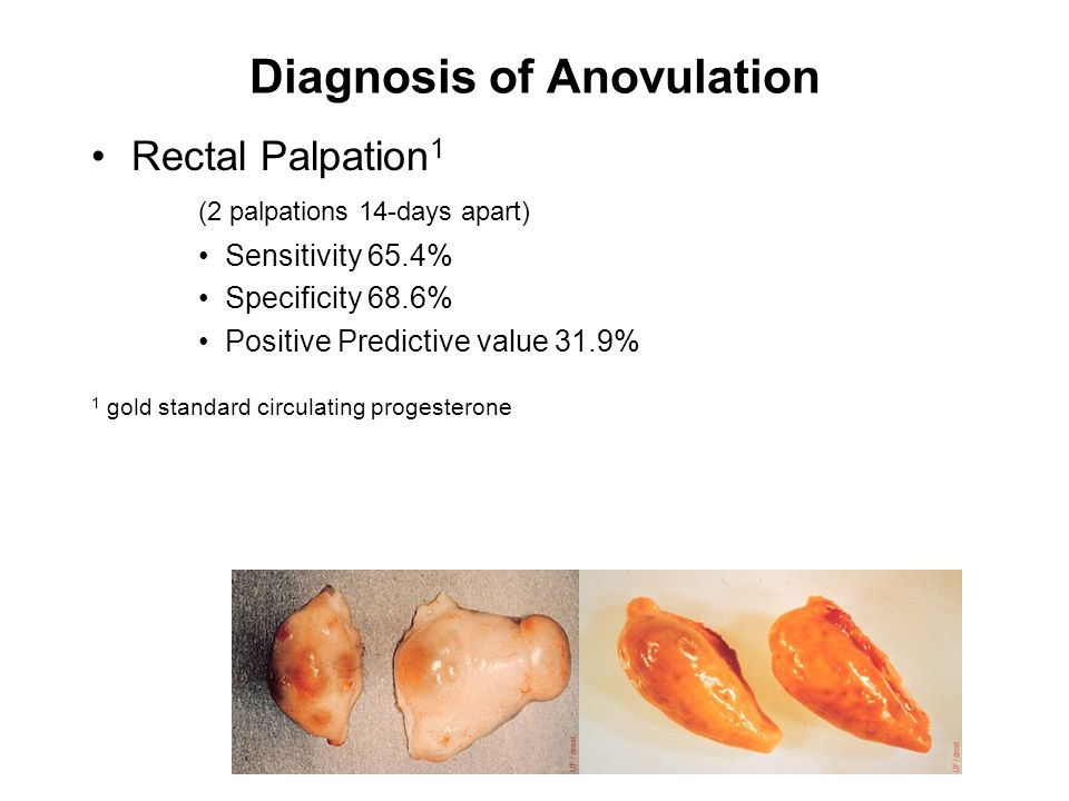 Diagnosis of Anovulation Rectal Palpation 1 (2 palpations 14-days apart) Sensitivity 65.4% Specificity 68.6% Positive Predictive value 31.9% 1 gold standard circulating progesterone