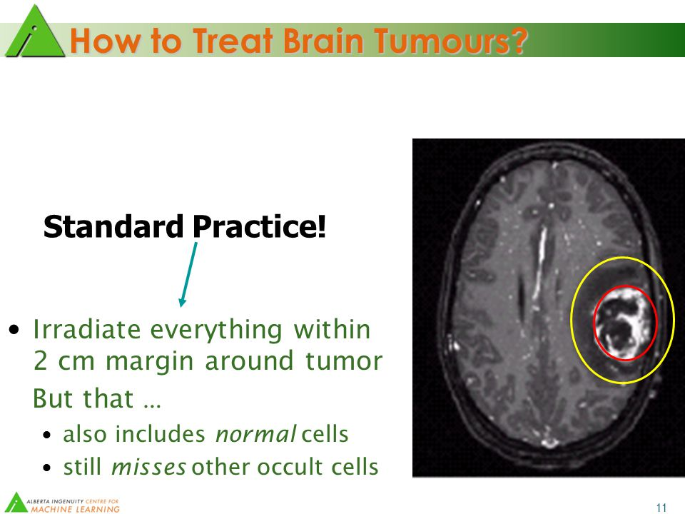 11 How to Treat Brain Tumours. Irradiate ONLY visible tumor No.