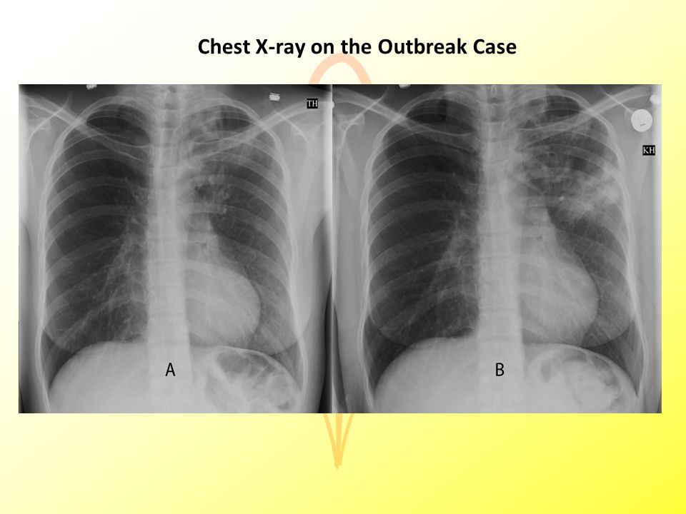 Chest X-ray on the Outbreak Case