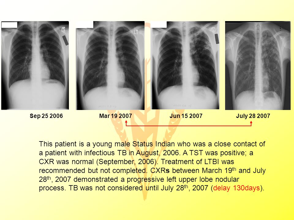 This patient is a young male Status Indian who was a close contact of a patient with infectious TB in August, 2006.