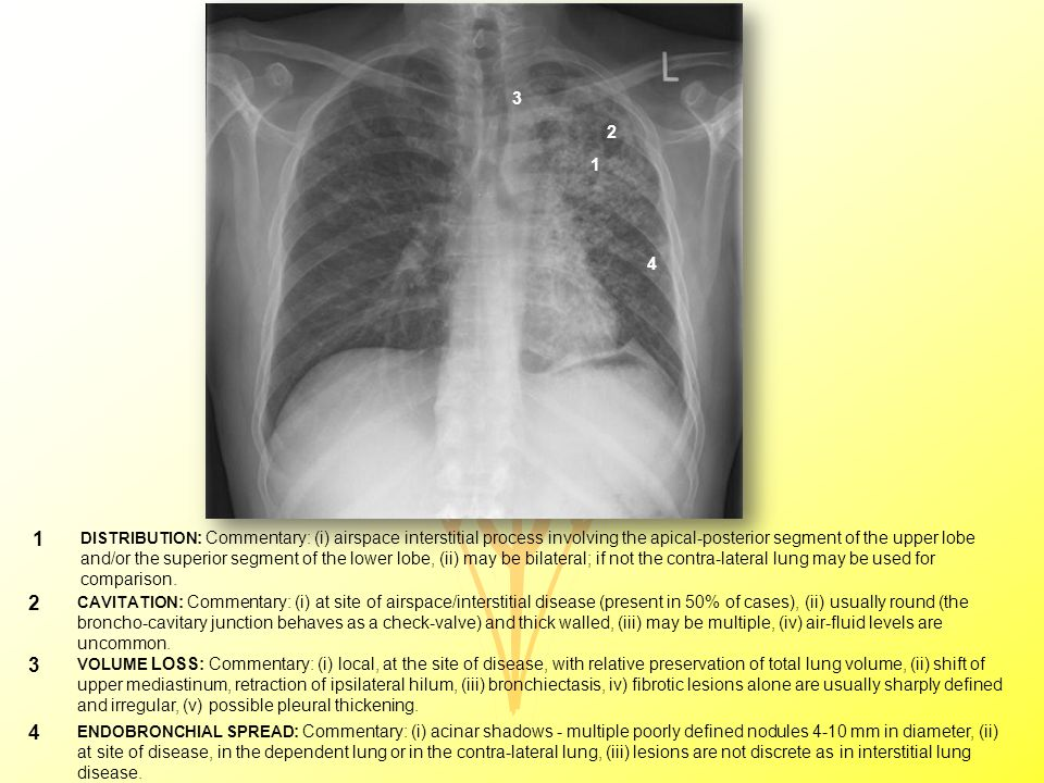 1 DISTRIBUTION : Commentary: (i) airspace interstitial process involving the apical-posterior segment of the upper lobe and/or the superior segment of the lower lobe, (ii) may be bilateral; if not the contra-lateral lung may be used for comparison.