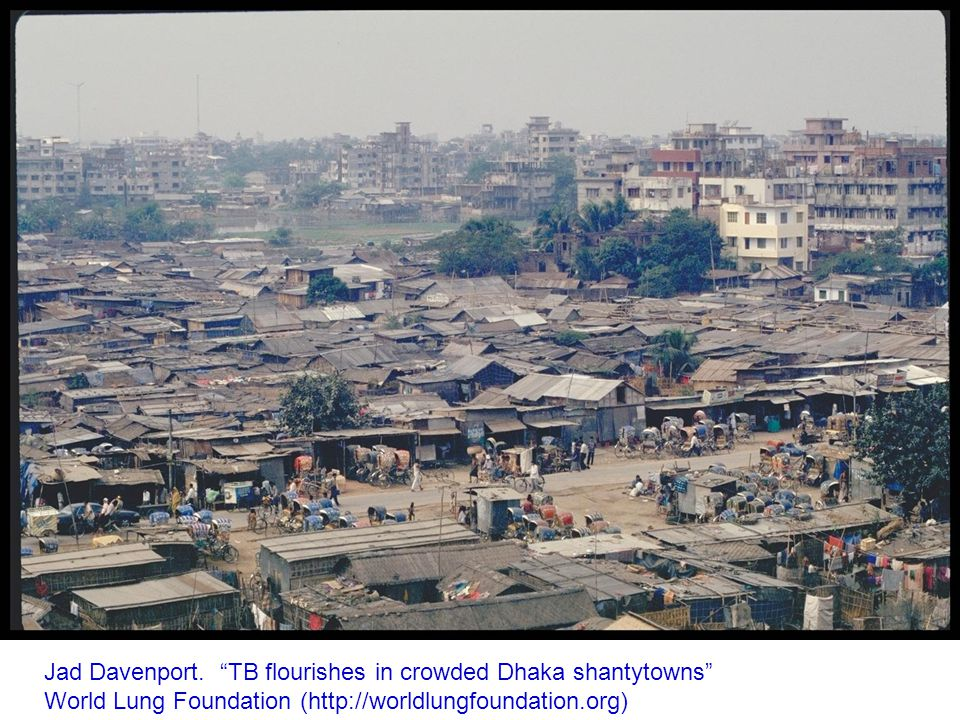 "Jad Davenport. ""TB flourishes in crowded Dhaka shantytowns"" World Lung Foundation (http://worldlungfoundation.org)"