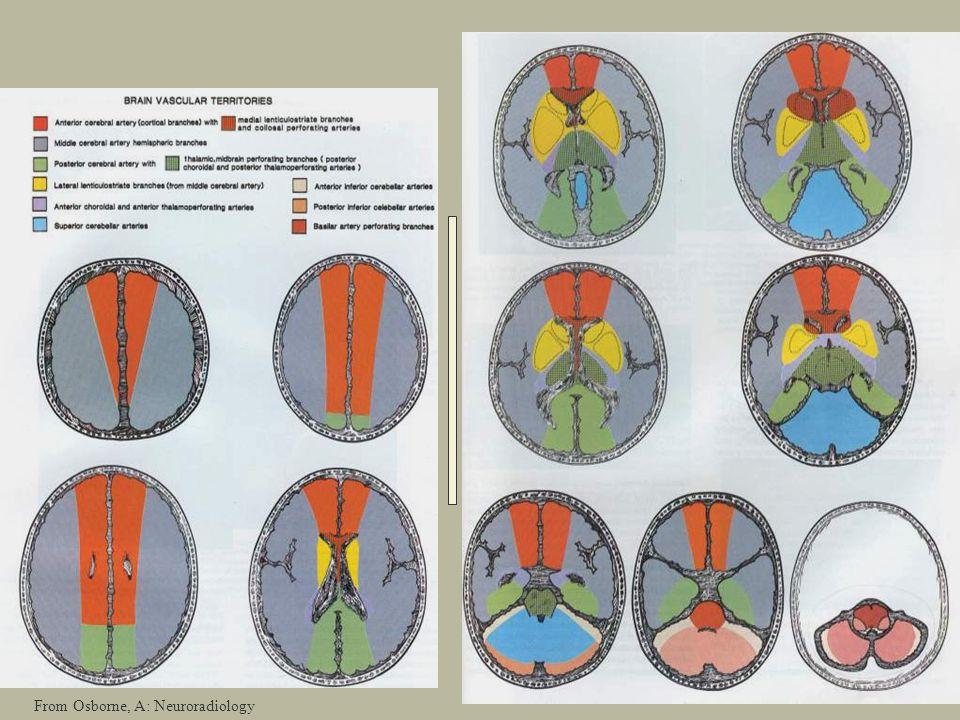 From Osborne, A: Neuroradiology