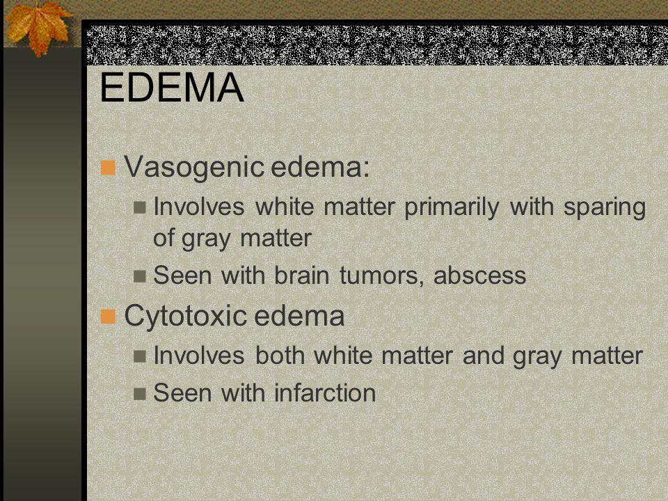 EDEMA Vasogenic edema: Involves white matter primarily with sparing of gray matter Seen with brain tumors, abscess Cytotoxic edema Involves both white