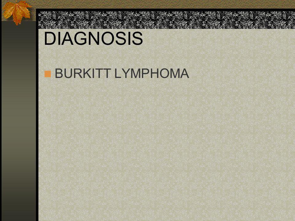 DIAGNOSIS BURKITT LYMPHOMA