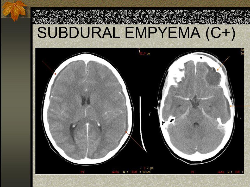 SUBDURAL EMPYEMA (C+)