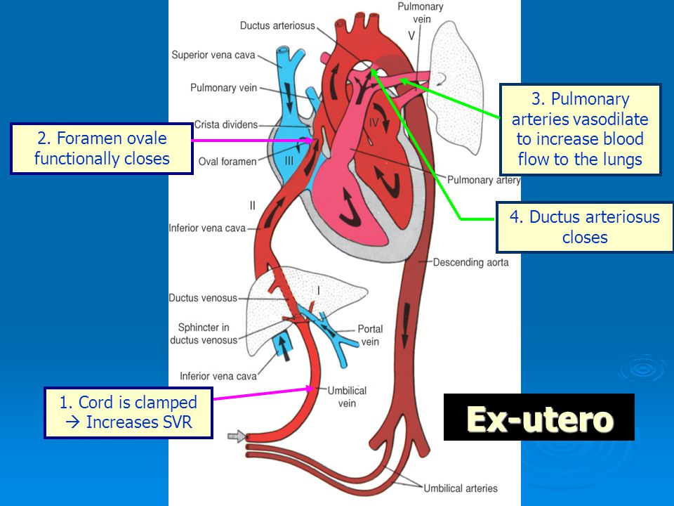 1. Cord is clamped  Increases SVR 2. Foramen ovale functionally closes 3. Pulmonary arteries vasodilate to increase blood flow to the lungs Ex-utero