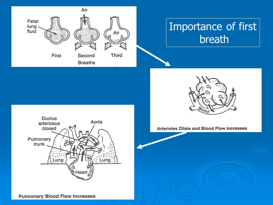 Importance of first breath