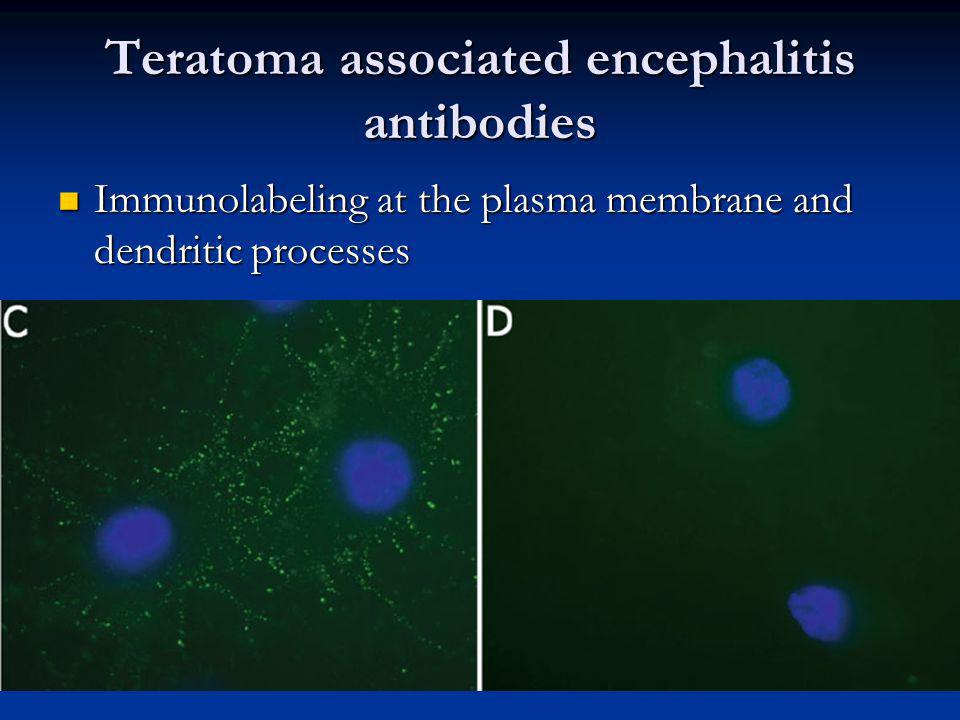 Teratoma associated encephalitis antibodies Immunolabeling at the plasma membrane and dendritic processes Immunolabeling at the plasma membrane and dendritic processes