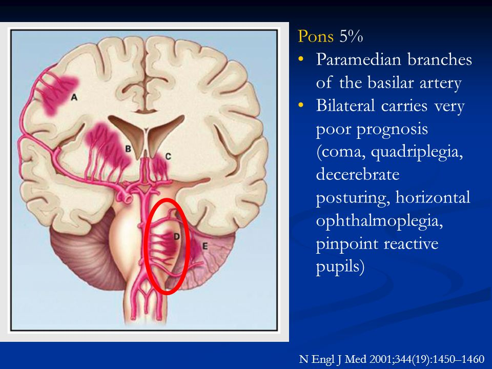 N Engl J Med 2001;344(19):1450–1460 Pons 5% Paramedian branches of the basilar artery Bilateral carries very poor prognosis (coma, quadriplegia, decer