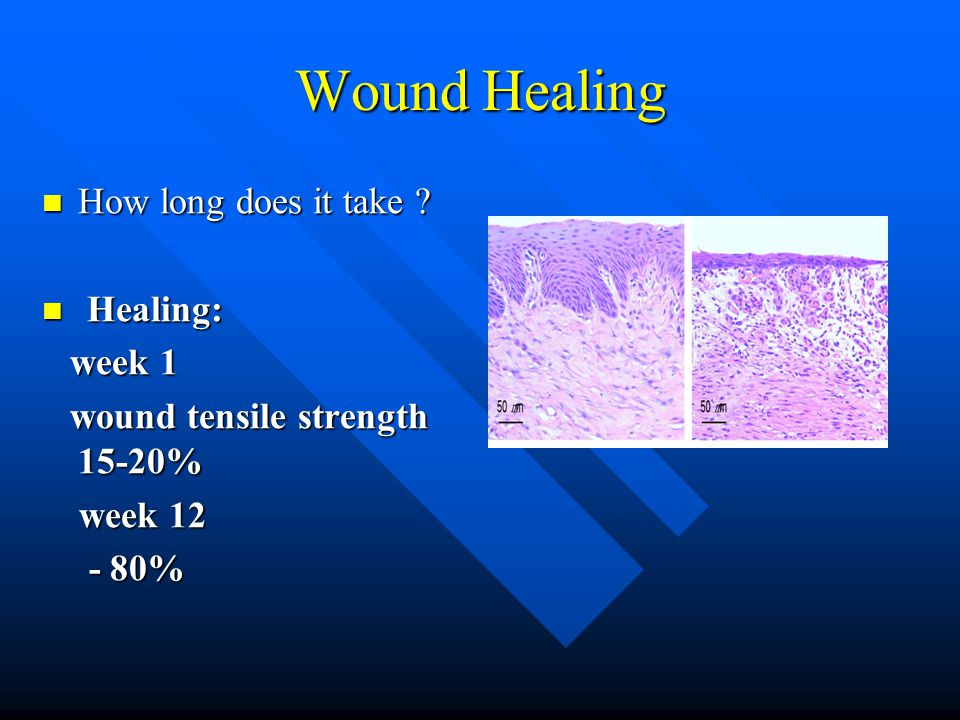 Wound Healing How long does it take . How long does it take .