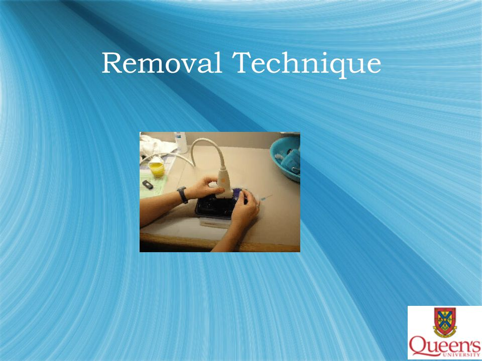 Removal Technique  1. 1 or 2 needles probe