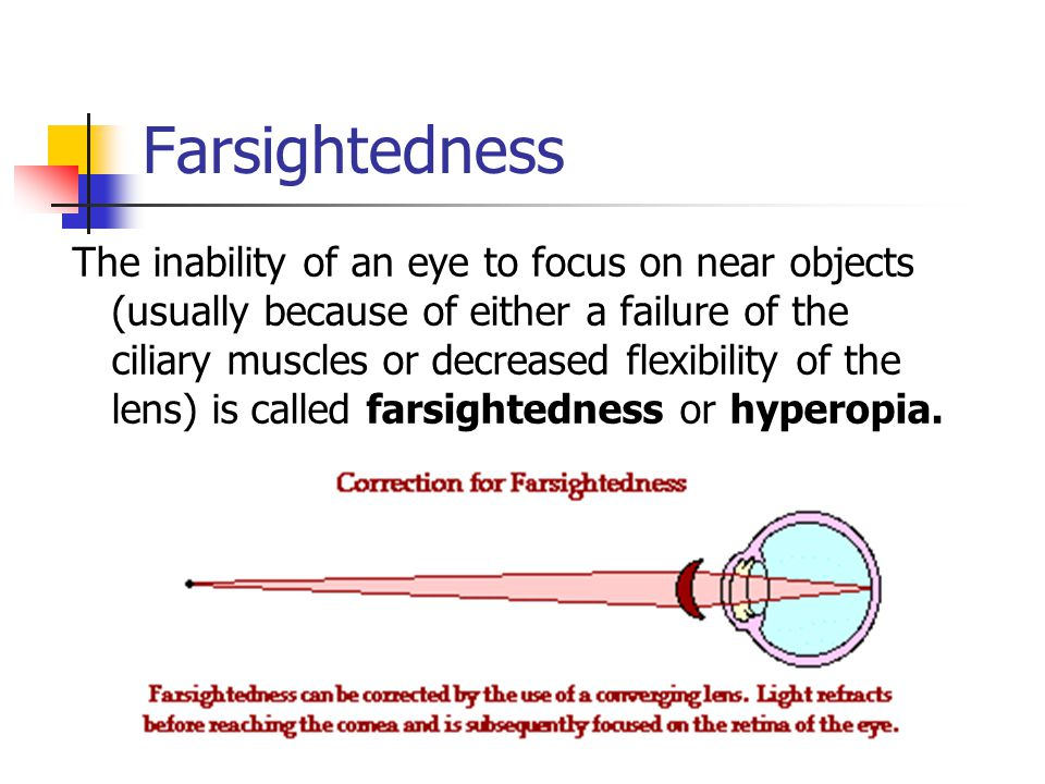 Farsightedness The inability of an eye to focus on near objects (usually because of either a failure of the ciliary muscles or decreased flexibility of the lens) is called farsightedness or hyperopia.