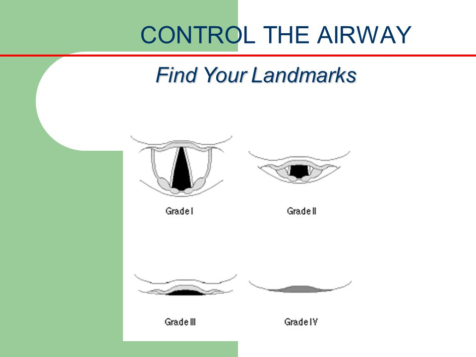 CONTROL THE AIRWAY Find Your Landmarks