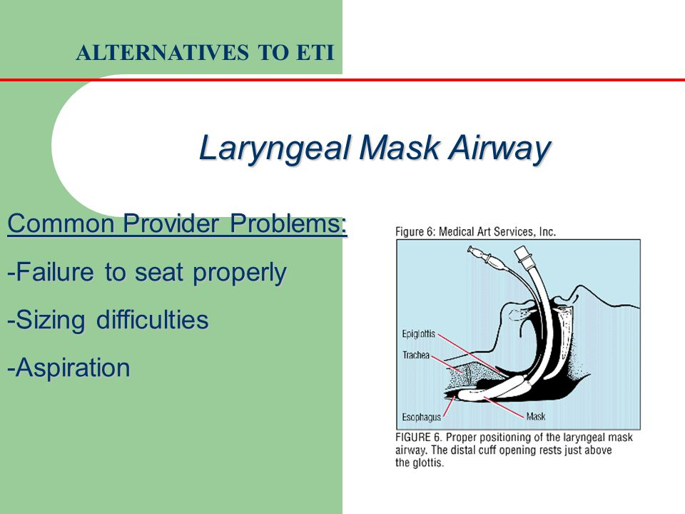 Common Provider Problems: -Failure to seat properly -Sizing difficulties -Aspiration Laryngeal Mask Airway ALTERNATIVES TO ETI