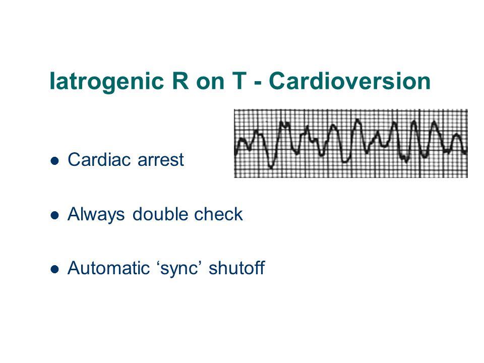Iatrogenic R on T - Cardioversion Cardiac arrest Always double check Automatic 'sync' shutoff