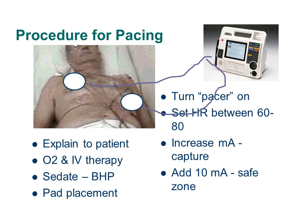 """Procedure for Pacing Explain to patient O2 & IV therapy Sedate – BHP Pad placement Turn """"pacer"""" on Set HR between 60- 80 Increase mA - capture Add 10"""