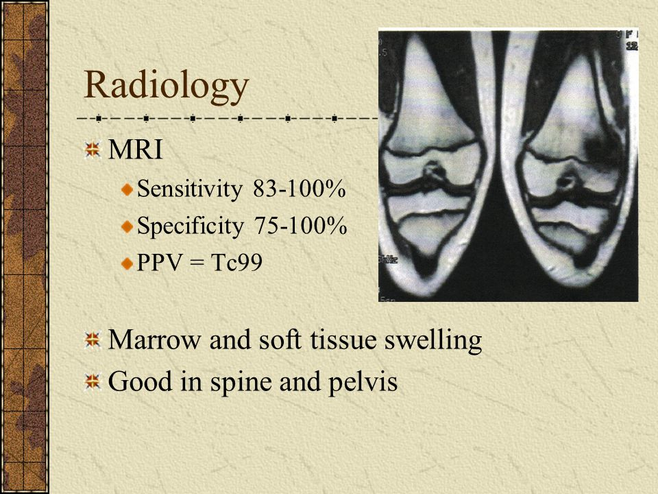 Radiology MRI Sensitivity 83-100% Specificity 75-100% PPV = Tc99 Marrow and soft tissue swelling Good in spine and pelvis