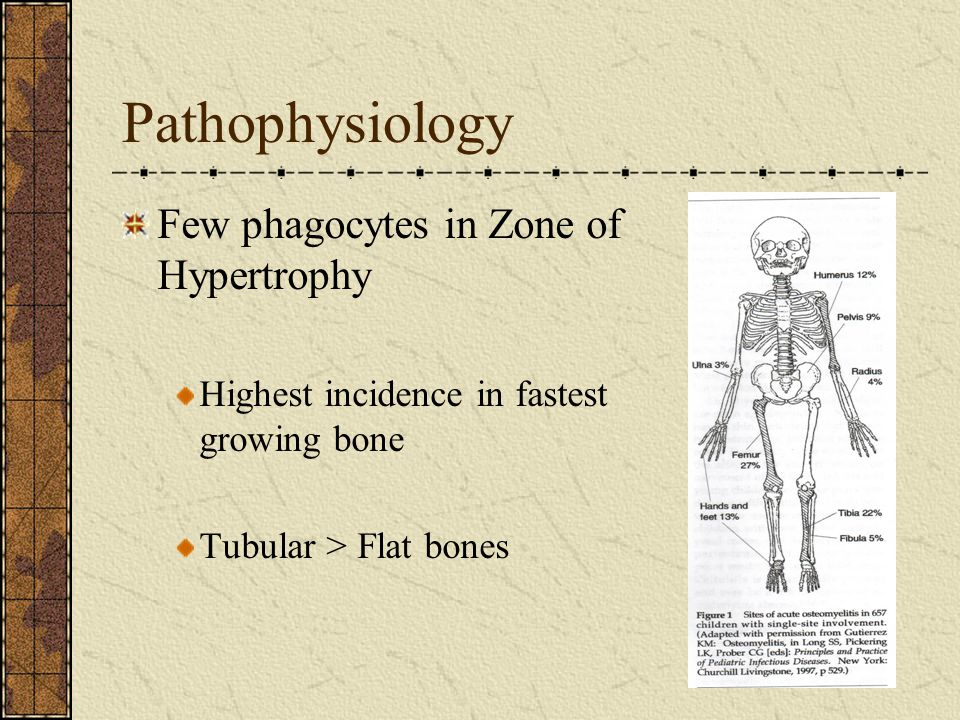 Pathophysiology Few phagocytes in Zone of Hypertrophy Highest incidence in fastest growing bone Tubular > Flat bones